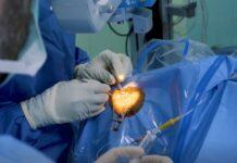 Academisch Ziekenhuis maakt Hoornvliestransplantaties mogelijk in Suriname
