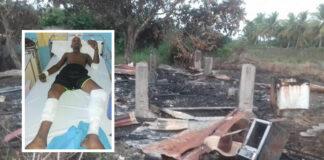 Verslaafde man mishandeld en huis in brand gestoken