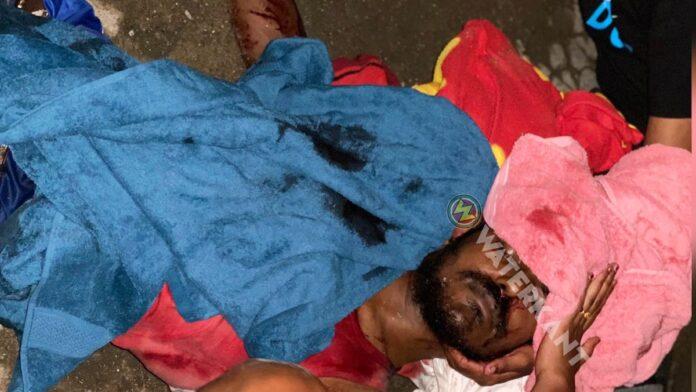 Guyanese man in Suriname gewond aan hoofd na vechtpartij
